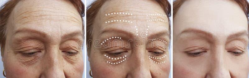Cosmetólogo mayor del biorevitalization del retiro de las arrugas de la mujer antes y después de la diferencia de la elevación fotografía de archivo