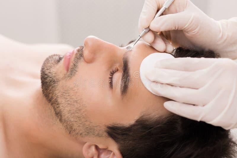 Cosmetólogo que usa el removedor de la espinilla para la cara de limpieza del hombre fotografía de archivo