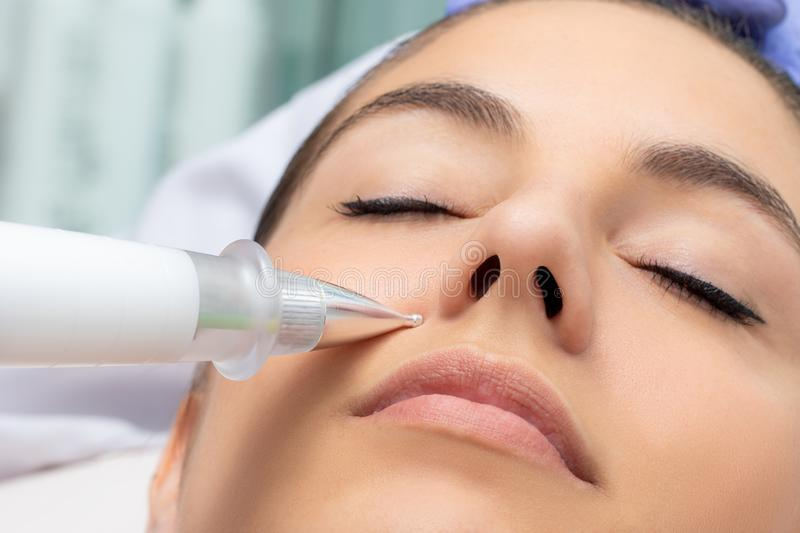 Cosmetic laser pen reducing wrinkles on female face. Macro detail of cone shaped plasma pen reducing wrinkles around cheek on young woman. Noninvasive cosmetic stock image