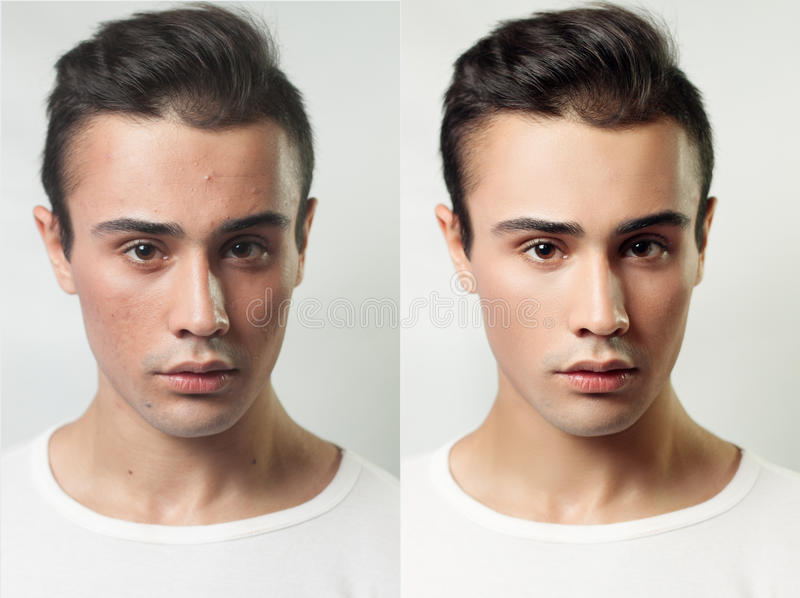 Before and after cosmetic operation. Young pretty man portrait royalty free stock photos