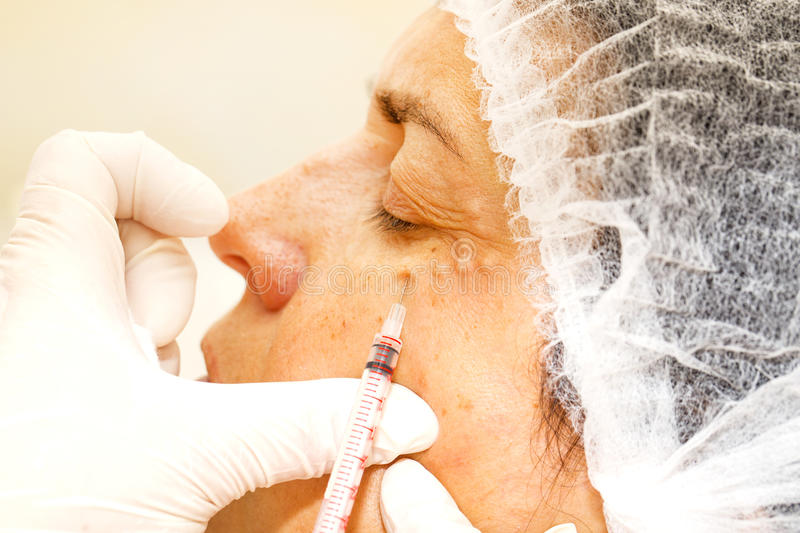 Cosmetic surgery. Cosmetic treatment with botox injection in a clinic royalty free stock photos