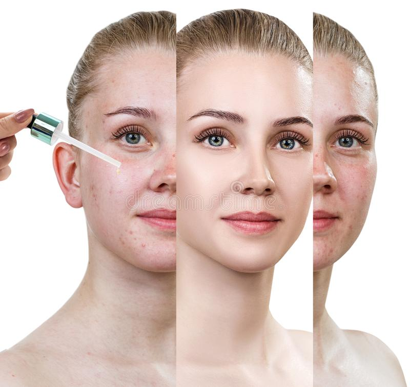Cosmetics oil applying on face of young woman. stock images