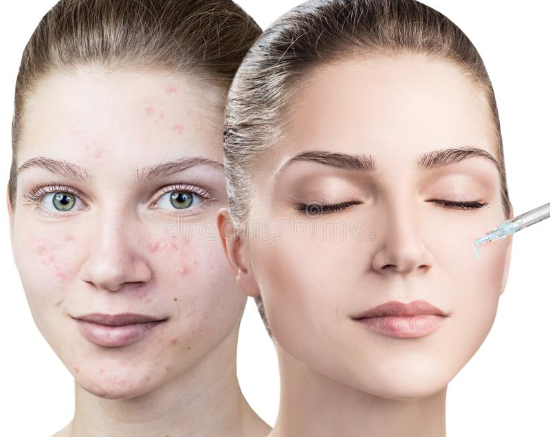 Cosmetics oil applying on face of young woman. stock image