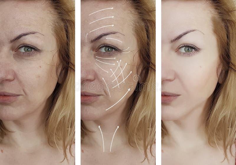 Cosmetología facial del efecto de la corrección de la piel de las arrugas de la mujer que envejece antes y después de flecha de l imagenes de archivo