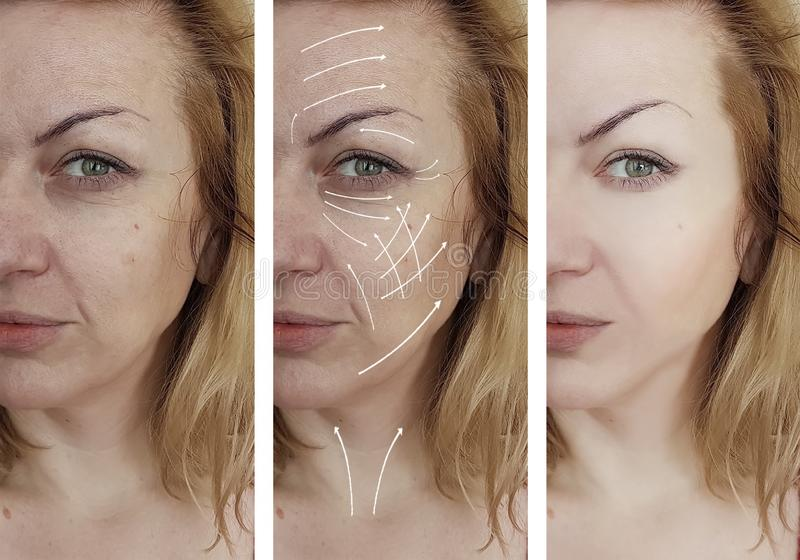 Cosmetologia facciale di effetto di correzione della pelle delle grinze della donna che invecchia prima e dopo la freccia di proc immagini stock
