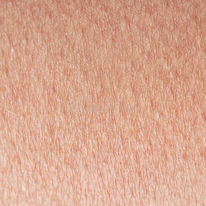 Cosmetological构造了从身体眉头世纪特写镜头的桃红色健康皮肤的背景,盖用goosebumps和罚款 库存照片