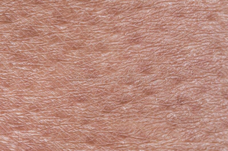 Cosmetological textured o fundo da pele saudável cor-de-rosa do close-up do século da testa do corpo, coberta com os goosebumps e fotografia de stock royalty free