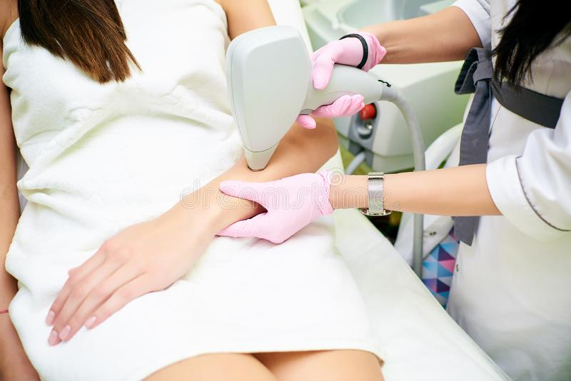 A cosmetologist carries out a procedure for laser hair removal from the body of a girl. Laser hair removal. Cosmology. Hand hair removal stock image