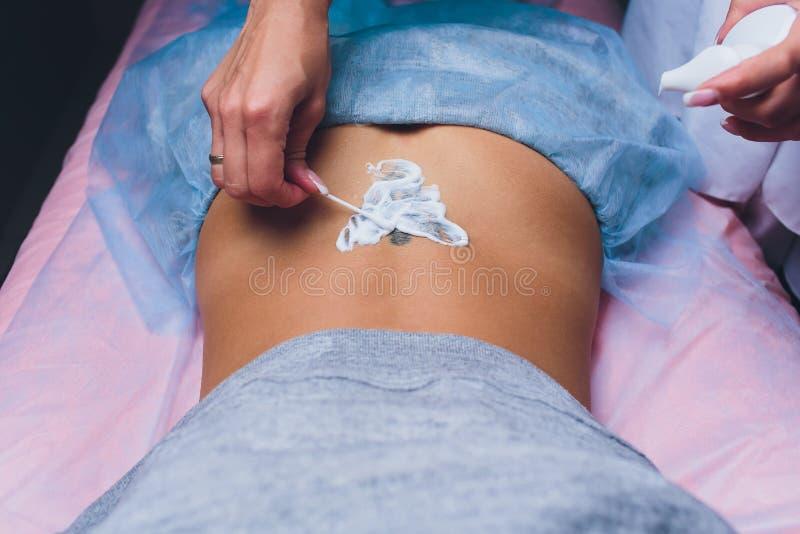 Cosmetologist con el paciente y el laser profesional del retiro del tatuaje en sal?n fotos de archivo libres de regalías