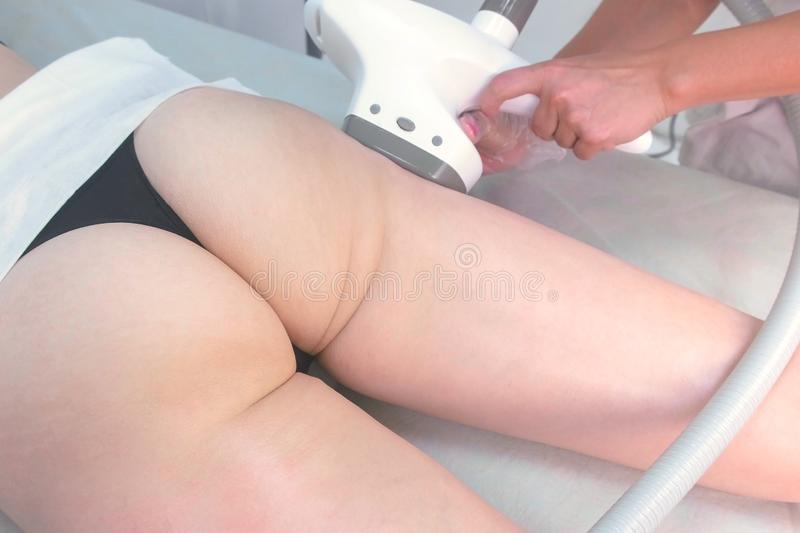 Cosmetologist makes a woman in lpg massage with oil on the booty and hips. Booty and hands close-up top view. royalty free stock photography