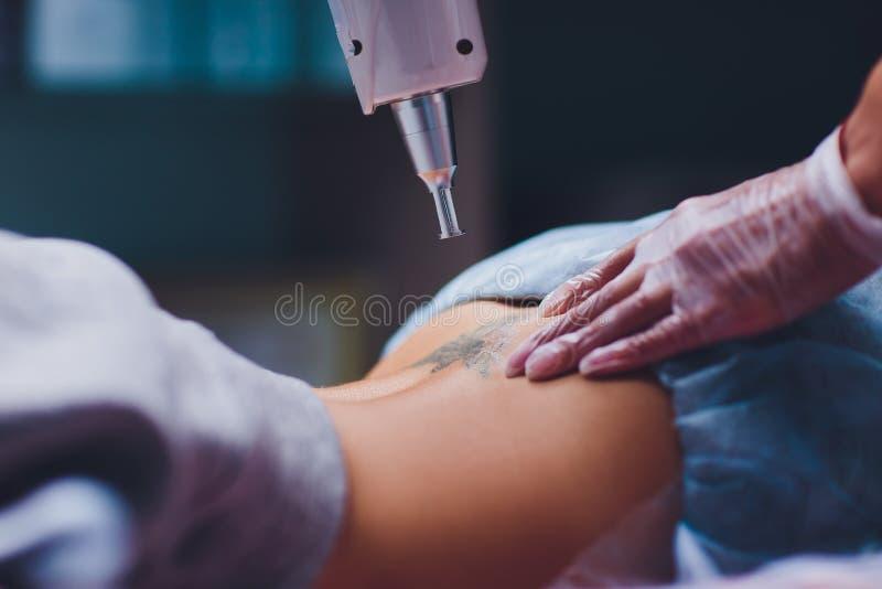 Cosmetologist med patienten och yrkesm?ssig tatueringborttagningslaser i salong royaltyfri foto