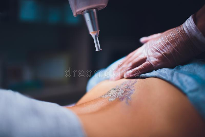 Cosmetologist with patient and professional tattoo removal laser in salon. Cosmetologist with patient and professional tattoo removal laser in salon royalty free stock images