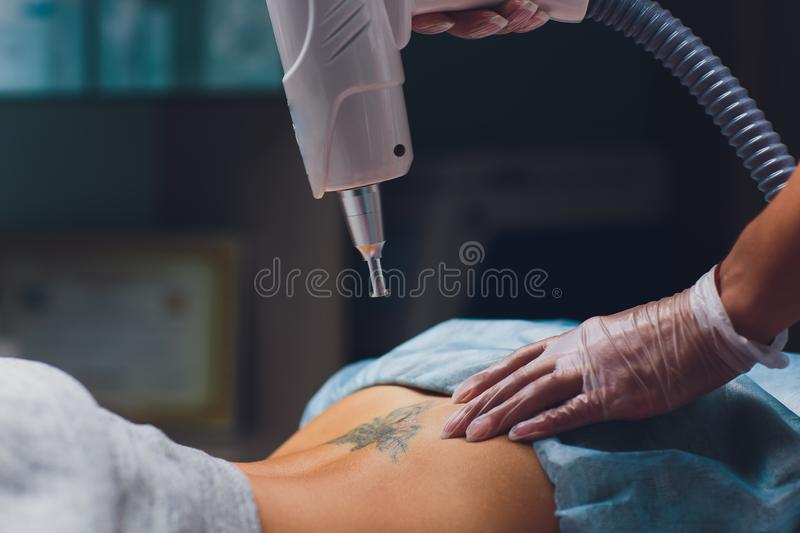 Cosmetologist with patient and professional tattoo removal laser in salon. Cosmetologist with patient and professional tattoo removal laser in salon stock photo