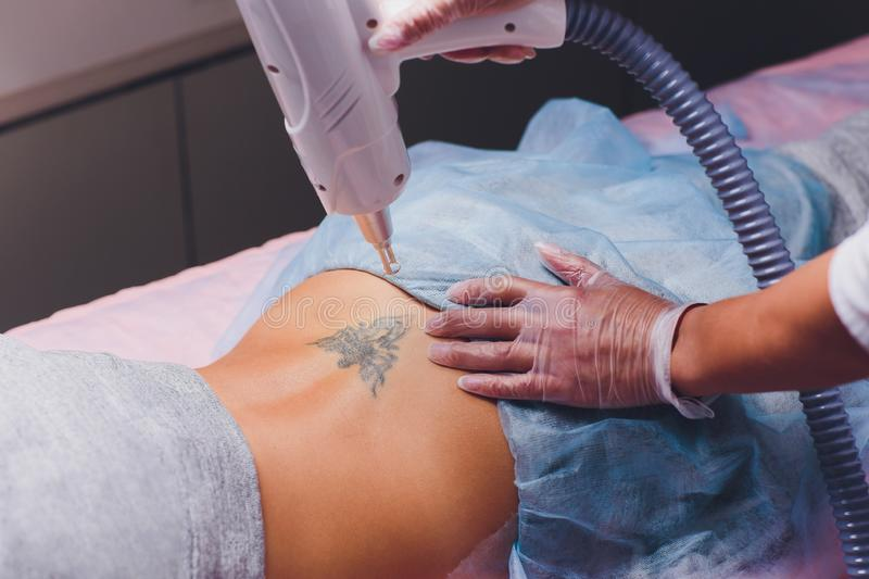 Cosmetologist with patient and professional tattoo removal laser in salon. Cosmetologist with patient and professional tattoo removal laser in salon stock images
