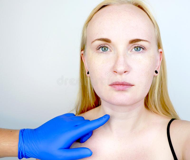 A cosmetologist prepares the patient for surgery: contour plastics of the neck, mesotherapy or botulinum therapy. Wrinkles and. Wrinkles and creases in the neck stock photo