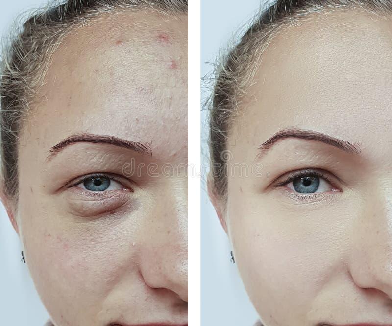 Cosmetology θεραπείας ρυτίδων προσώπου γυναικών ασθενής αναζωογόνησης πριν και μετά από τη θεραπεία στοκ φωτογραφίες
