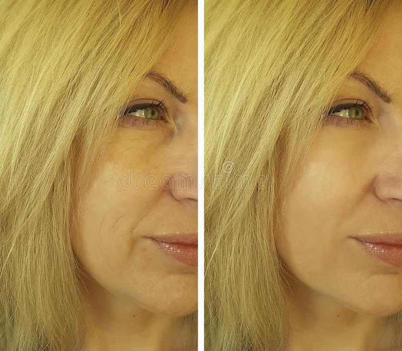 Cosmetology för framsidakvinnaskrynklor före och efter arkivbild