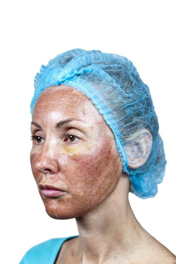 cosmetology Flå i kursen av kasseringen efter en djup kemisk skalning royaltyfria bilder