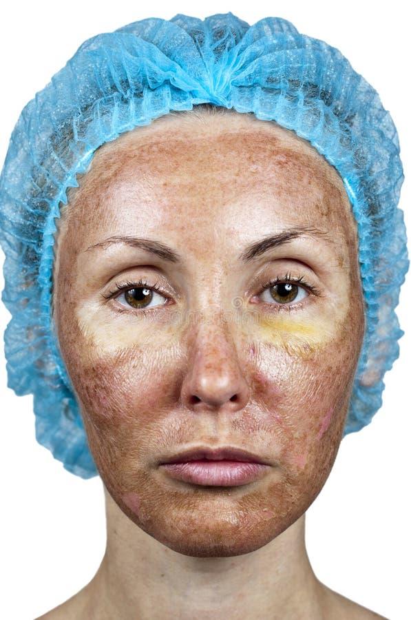 cosmetology Flå i kursen av kasseringen efter en djup kemisk skalning royaltyfri foto