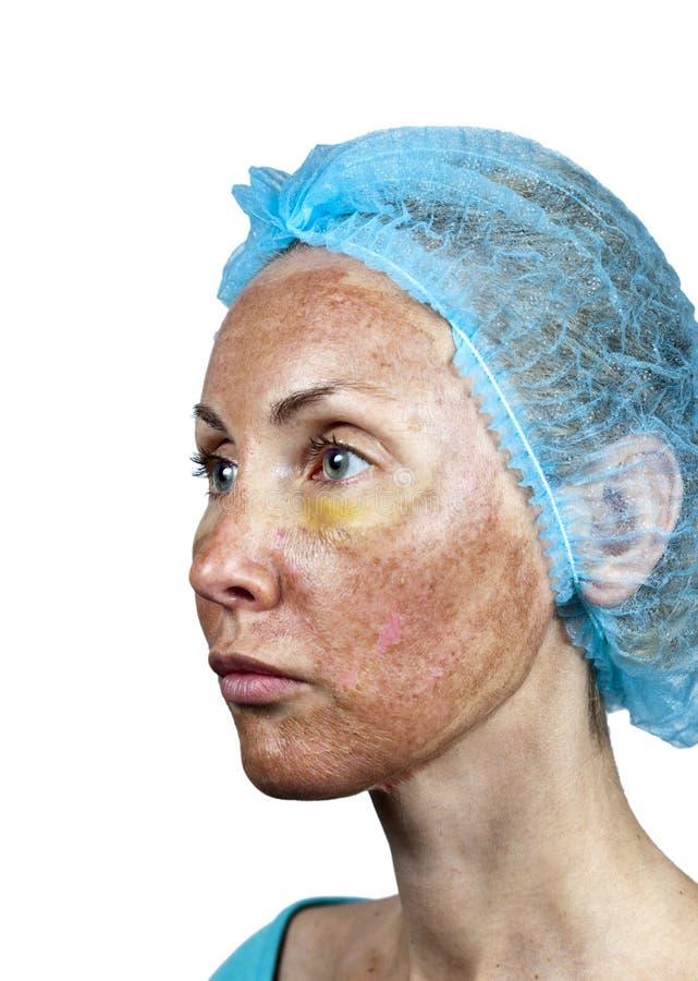 cosmetology Flå i kursen av kasseringen efter en djup kemisk skalning Gräns mellan den bearbetade och sunda huden på en ne arkivfoto