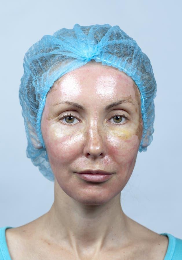 cosmetology Ny hud efter en chemical skalning, en rodnad på grund av för snabbt ta bort ett gammalt lager royaltyfria foton
