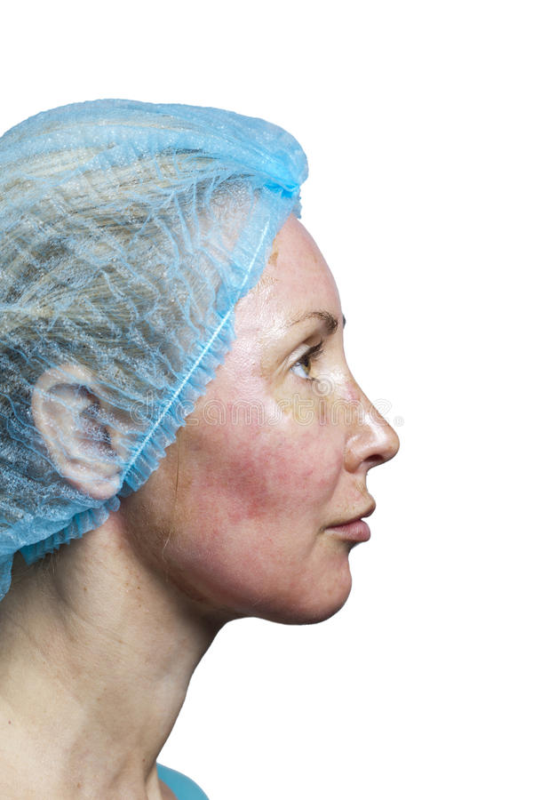 cosmetology Ny hud efter en chemical skalning, en rodnad på grund av för snabbt ta bort ett gammalt lager arkivbilder