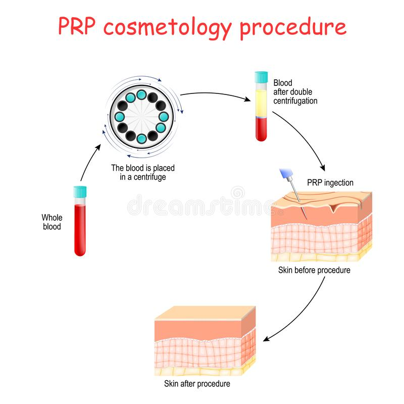Cosmetology PRP διαδικασία σωλήνες δοκιμής και σύριγγα με το αίμα και το πλάσμα αιμοπετάλιο-πλουσίων διανυσματική απεικόνιση