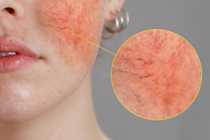 Cosmetology and rosacea. Close-up portrait of female face, cheeks with severe inflammation, blood vessels and rosacea royalty free stock images