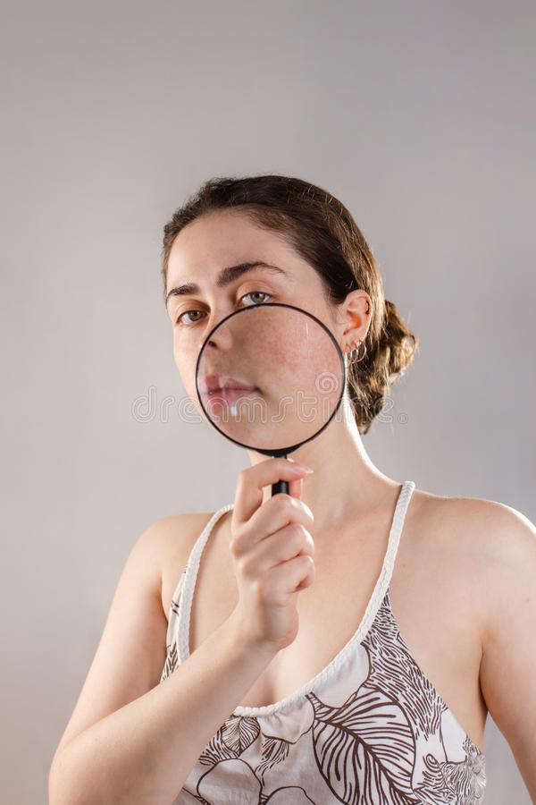 Cosmetology and rosacea. A young woman holds a magnifying glass near her face showing her cured skin stock photo