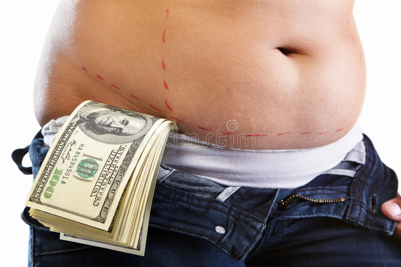 Cost of liposuction royalty free stock photos