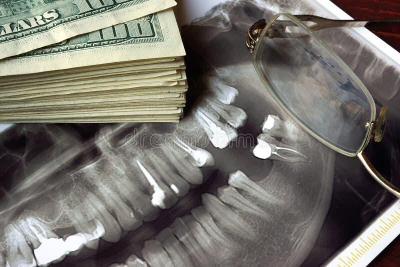 Coste del tratamiento dental fotos de archivo libres de regalías