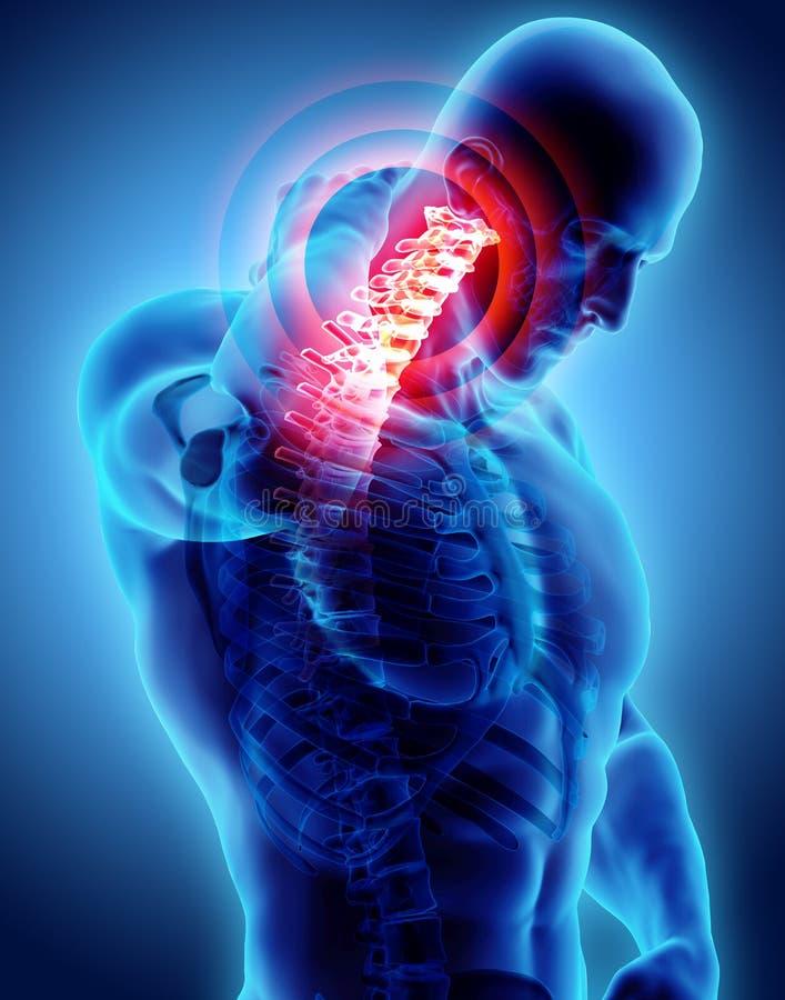 Cou douloureux - rayon X squelettique d'épine cervicale, illustration 3D illustration libre de droits