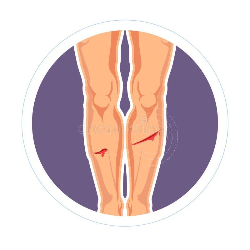 Coupe de peau de blessure ou saignement de douleur de jambes d'éraflure illustration de vecteur