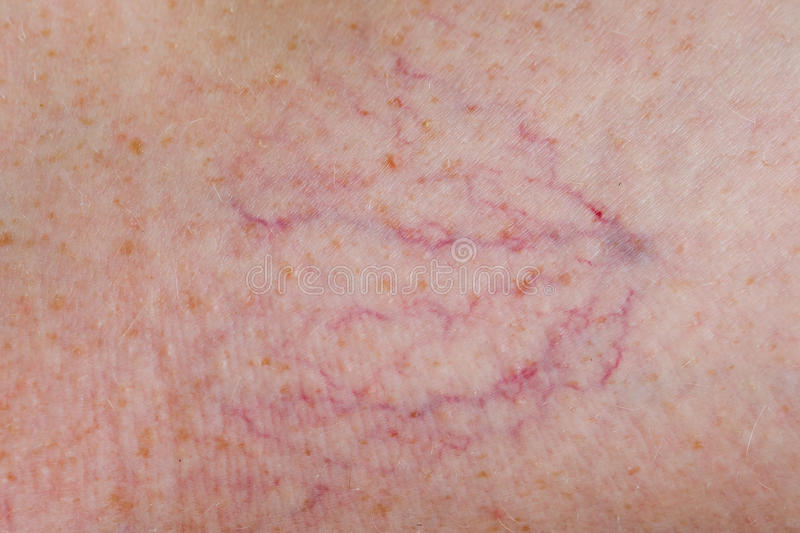 Download Couperosis stock photo. Image of papules, capillary, vasodilatation - 37521950