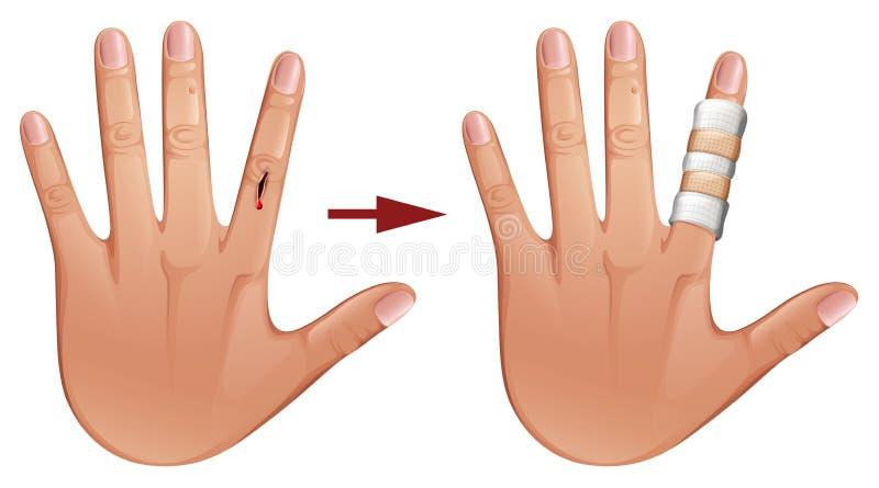 Coupez en main avec le bandage illustration stock