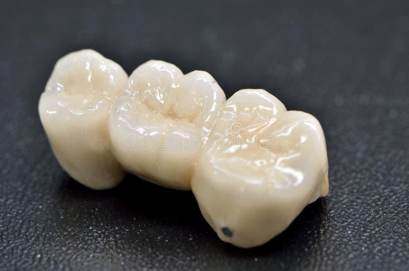 Couronne dentaire de porcelaine photo libre de droits