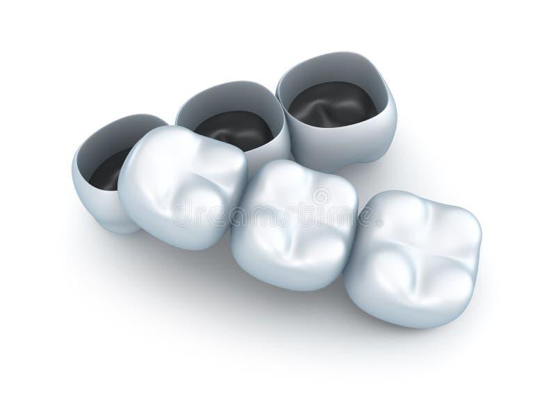 Couronnes de dent artificielle. illustration de vecteur
