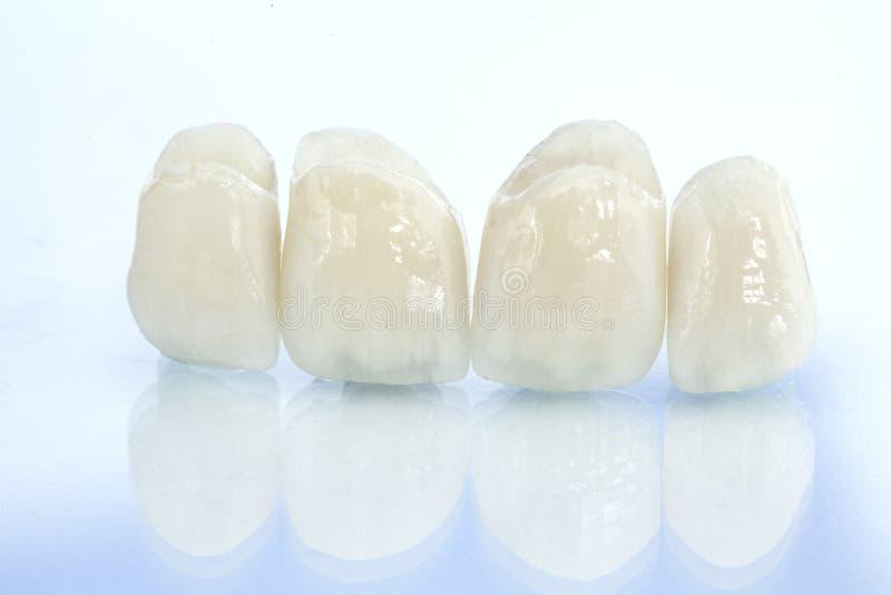 Couronnes dentaires en céramique gratuites en métal images libres de droits