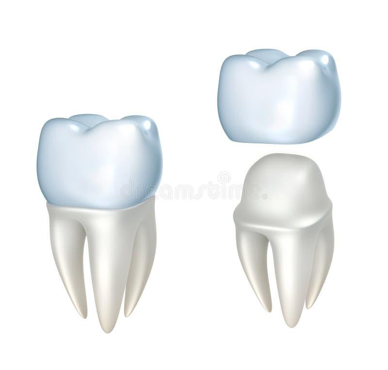 Couronnes dentaires et dent, d'isolement sur le blanc illustration stock