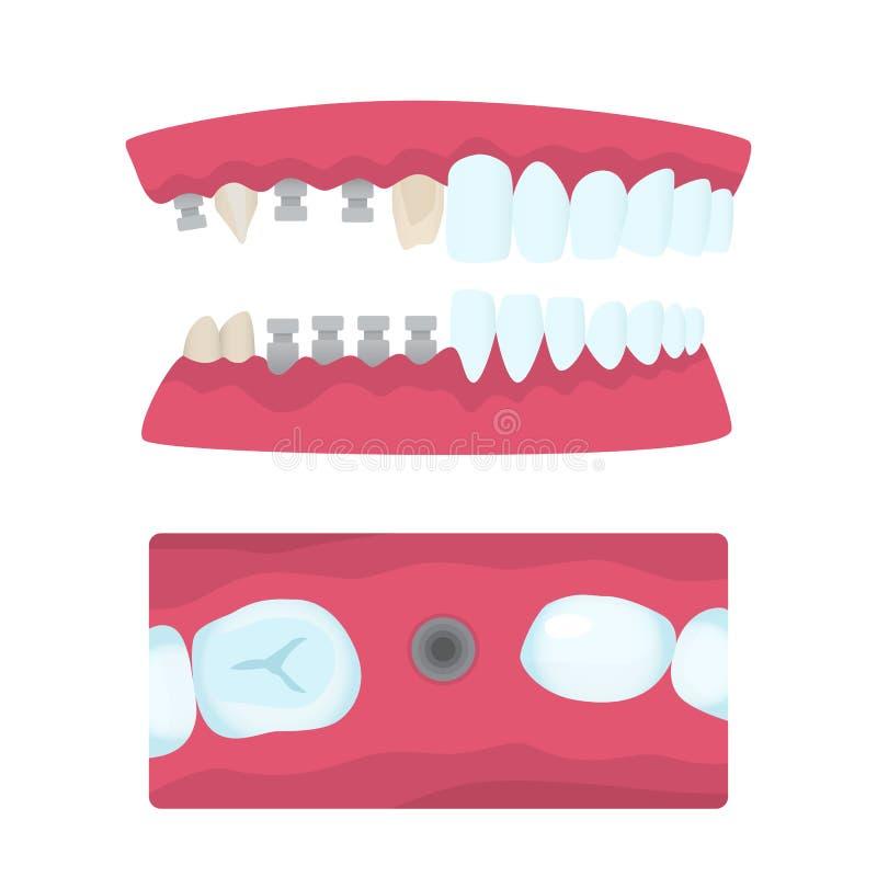 Couronnes dentaires et implantation illustration de vecteur