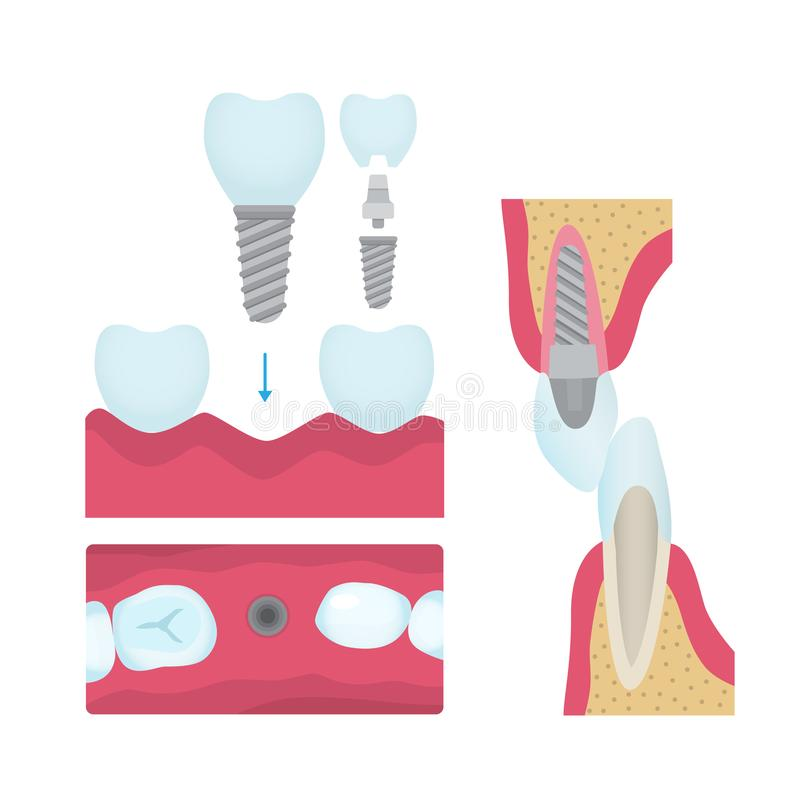 Couronnes dentaires et implantation illustration libre de droits