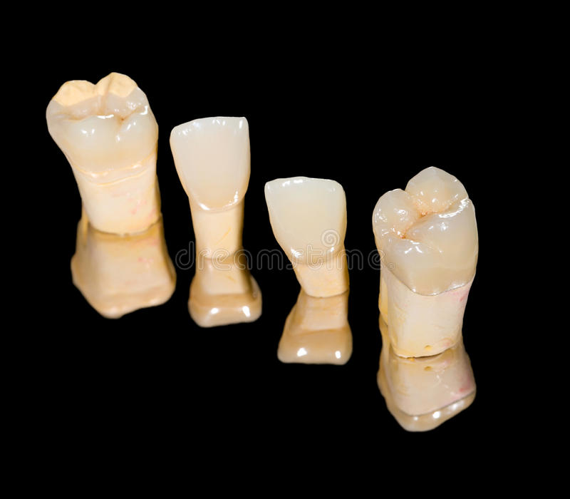 Couronnes en céramique dentaires image libre de droits