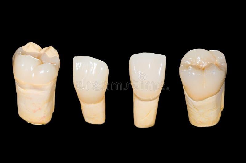 Couronnes en céramique dentaires photographie stock libre de droits