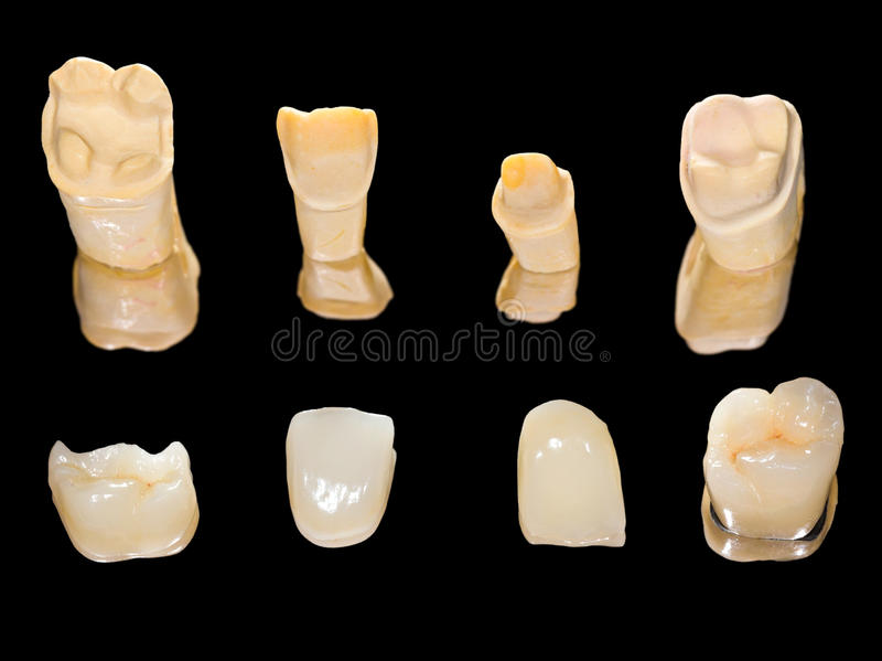 Couronnes en céramique dentaires photos stock