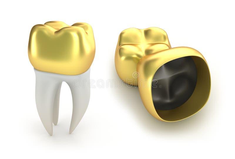 Couronnes et dent dentaires d'or illustration stock