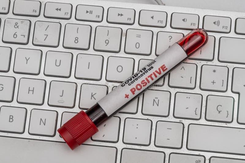 COVID 19 Coronavirus, échantillon de sang infecté dans le tube d'échantillonnage, sur le clavier d'ordinateur, Médicaments busine photo stock