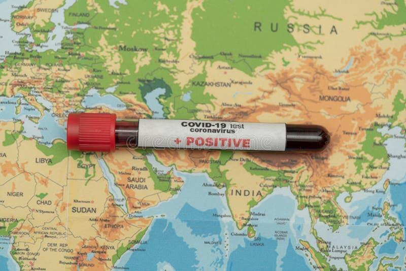COVID 19 Coronavirus, campione di sangue infetto nel tubo campione, sulla mappa mondiale, diffusione di malattie, pandemia, attiv fotografia stock