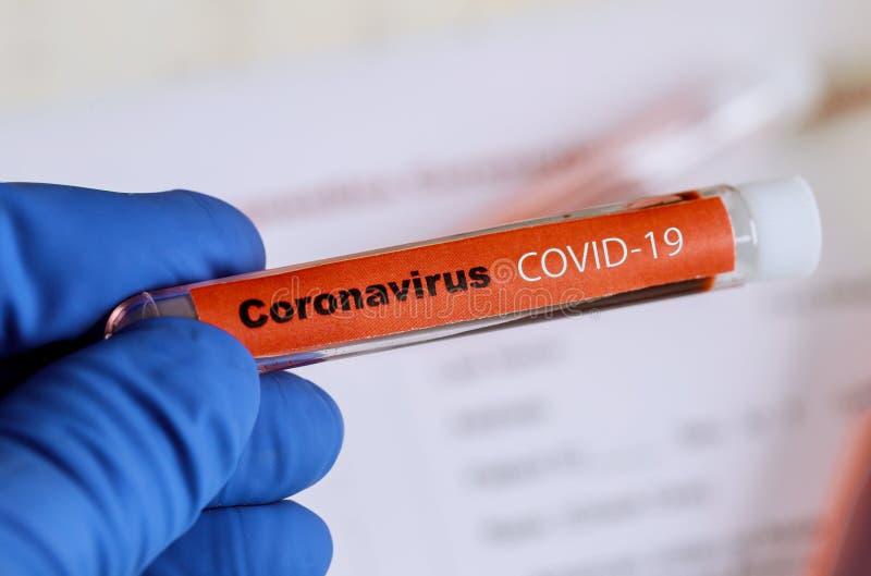 Covid 19 mit Coronavirus infizierte Blutprobe in Probenröhrchen in Hand des Arztes stockbild