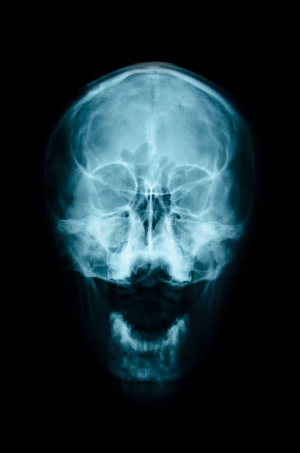 Cráneo AP de la radiografía de la película: muestre el cráneo normal del ser humano imagenes de archivo