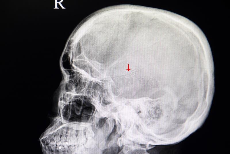 cráneo de la fractura foto de archivo